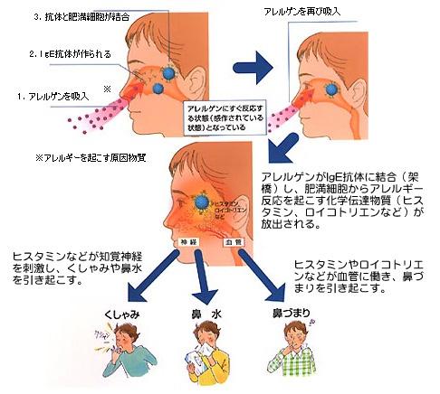性 鼻炎 アレルギー